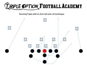 Triple versus 1 and 4i technique